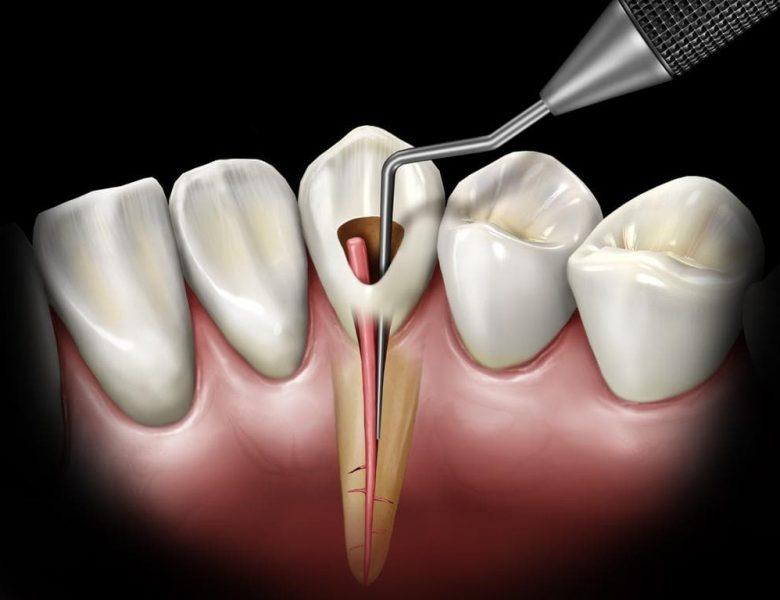 Eryaman Diş İle Sağlığınıza Kavuşun