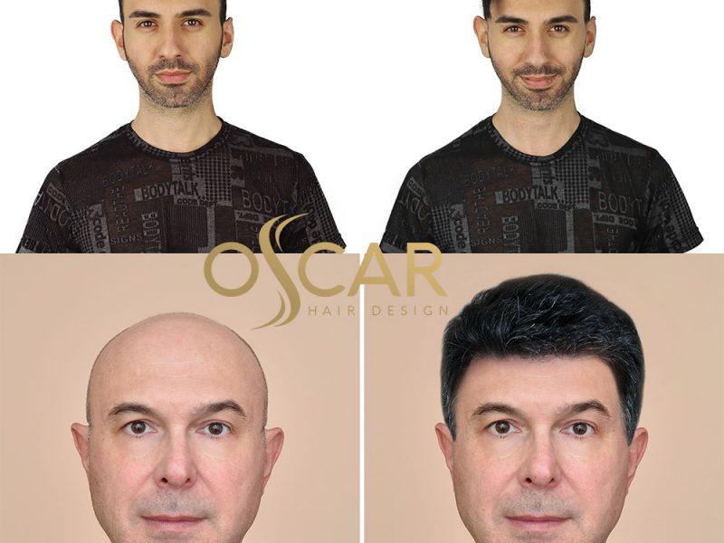Uzun Ömürlü Protez Saç Uygulamaları  Oscar Hair'de